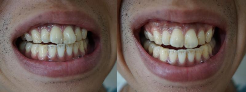 管理人の歯